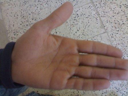 دست چپ-انگشت كوچك